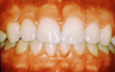 The Risks Of Gum Disease