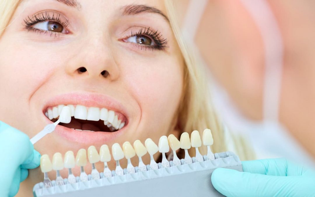 Why You Should Always Consult Your Dentist About Tooth Whitening Treatment
