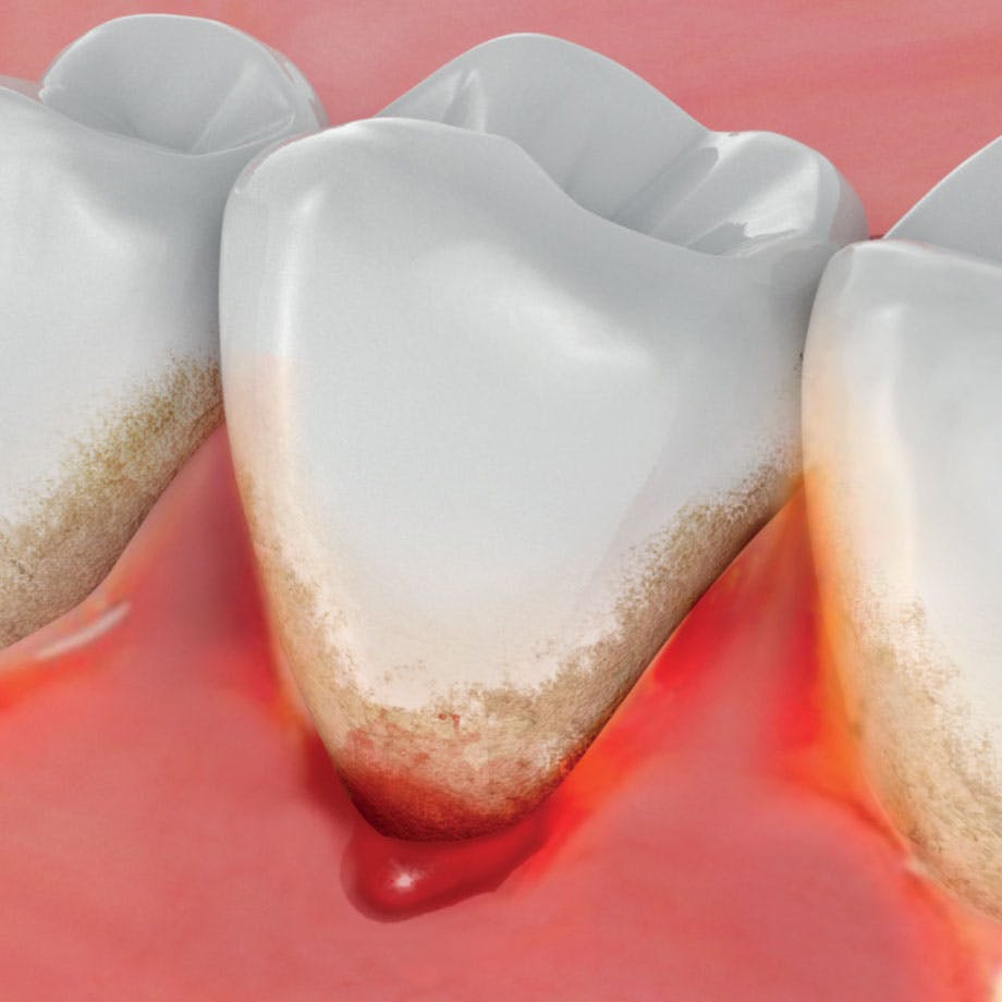 Why Do Gums Bleed?