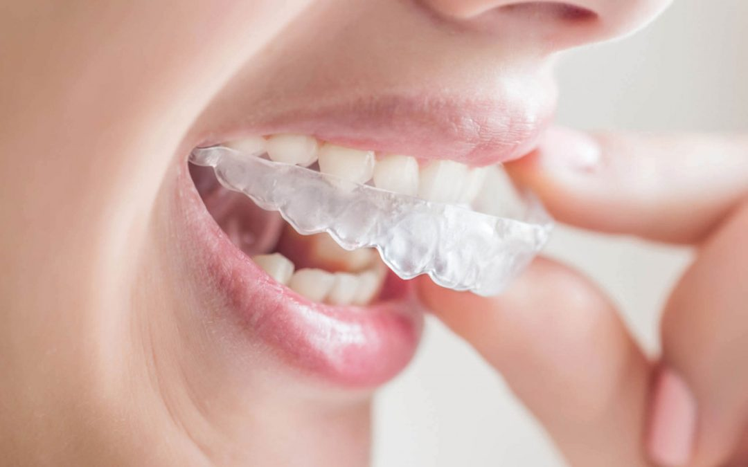 Invisalign versus Braces For Overbite Treatment