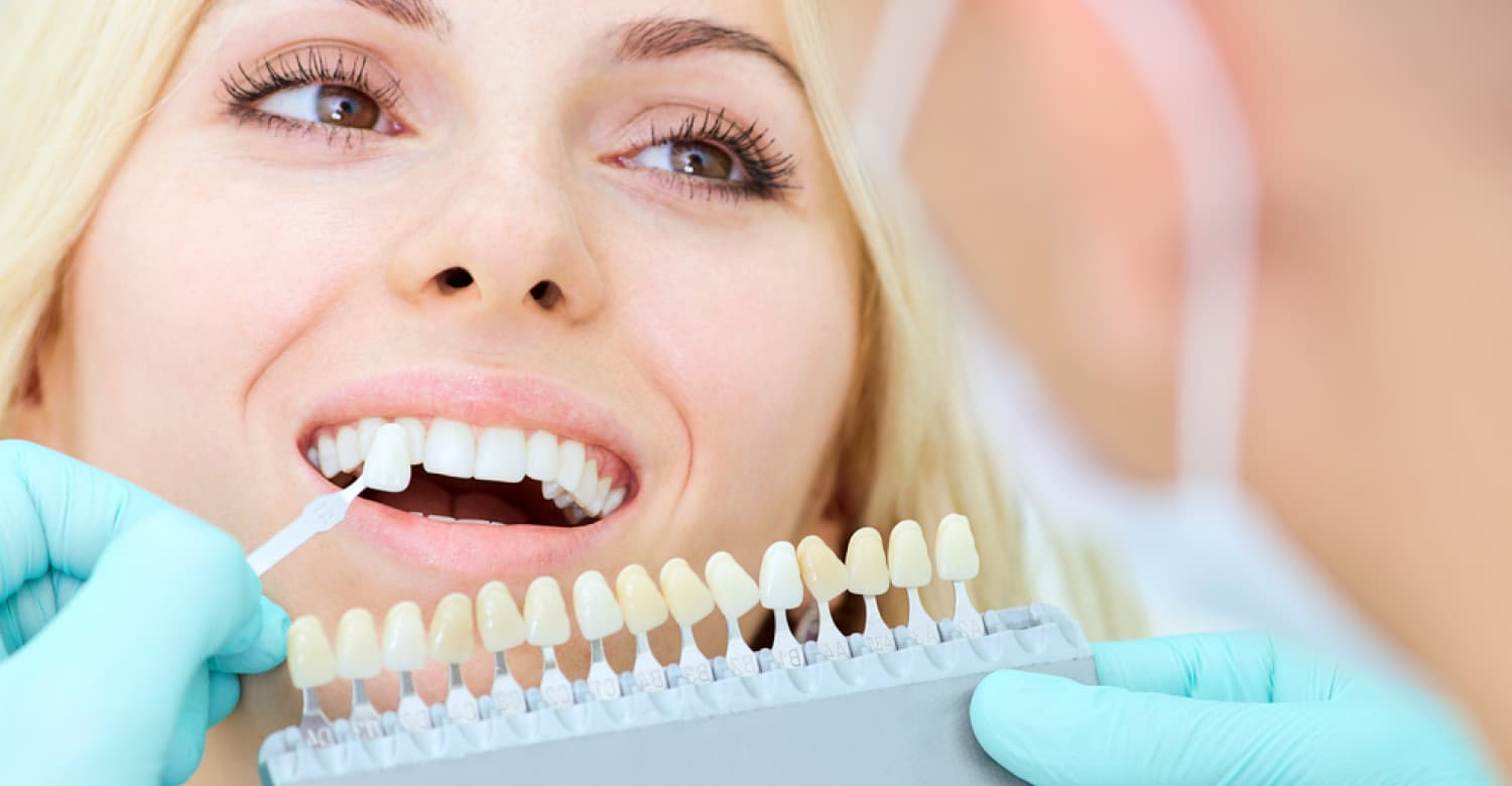 Teeth Whitening Procedure – how does it work?