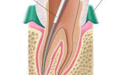How Root Canals Help To Save Your Teeth