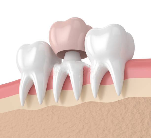 What Are The Types Of Dental Crowns?