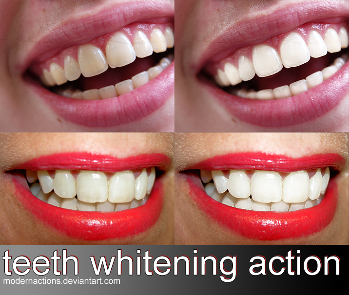 Why Teeth Whitening Can Only Be Carried Out By Dentists