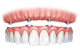 All-On-4 Dentures – The Solution You May Not Know About