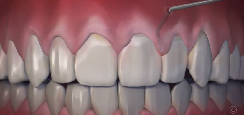 How The Chao Pinhole Surgical Technique Painlessly Solves Gum Recession
