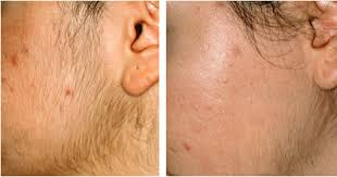 How IPL Laser Technology Permanently Removes The Anguish Of Excess Hair.