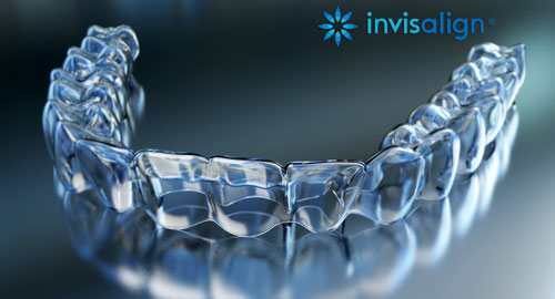 Why Invisalign Is The Best Treatment