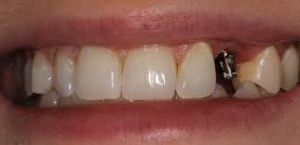 What Are Mini Dental Implants And They Can Help Restore Your Smile