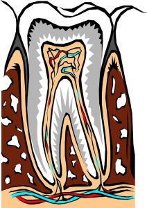 Can Root Canals Cause Nerve Damage?