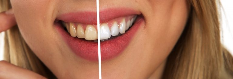 Can Teeth Whitening Crack Your Teeth?