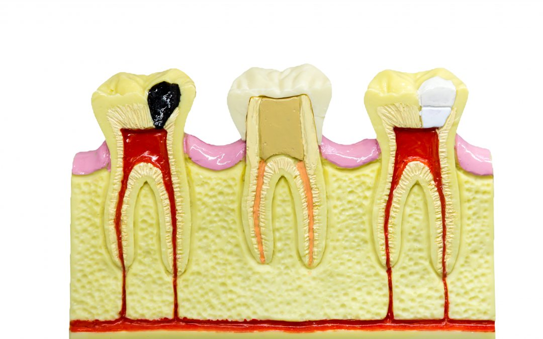 What is periodontal treatment?