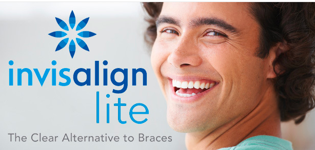 Invisalign Lite – what is it and is it right for you?