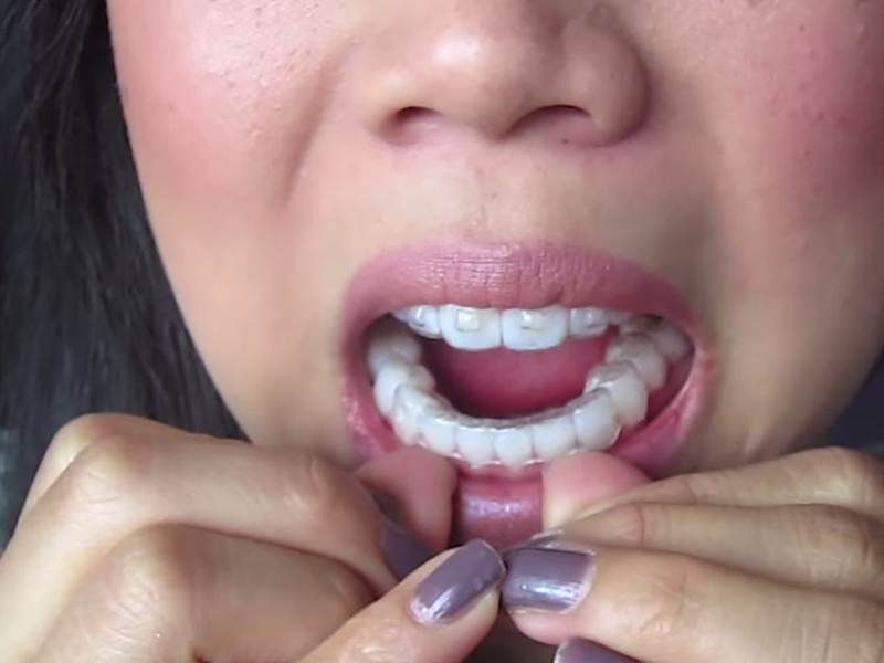 Invisalign pain – does it hurt?