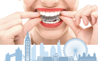 Invisalign London – what are your options?